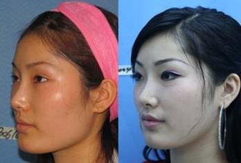广州面部颧骨整形手术失败怎样修复呢