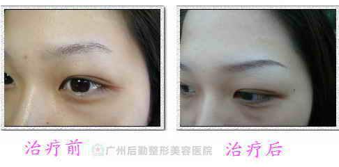 广州什么是纹眉 纹眉的过程是怎样的