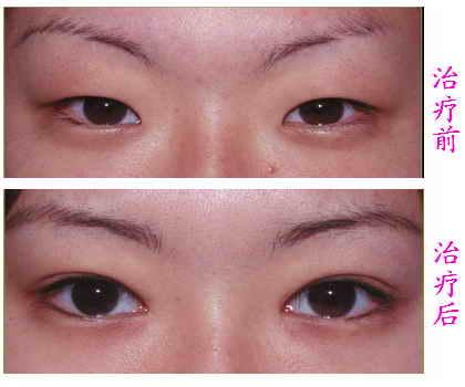 小眼睛如何变大眼睛 广州韩式双眼皮的优点