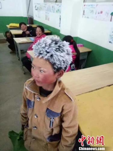 中国、寒波で頭も眉も真っ白になった少年が話題 ボランティアが寄付募る