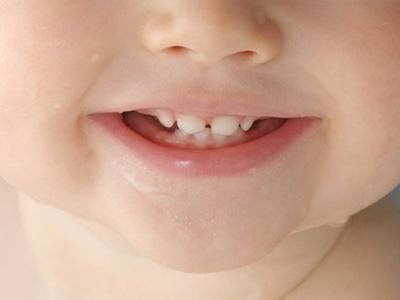 专家提醒:乳牙患龋要及时医治